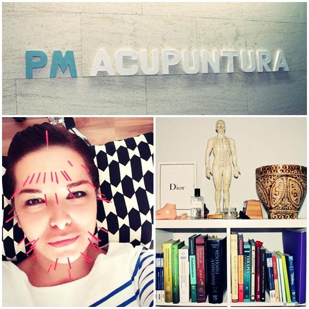 pm acupuntura lifting facial